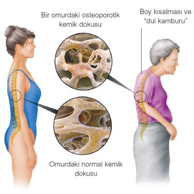 osteoporozresimi